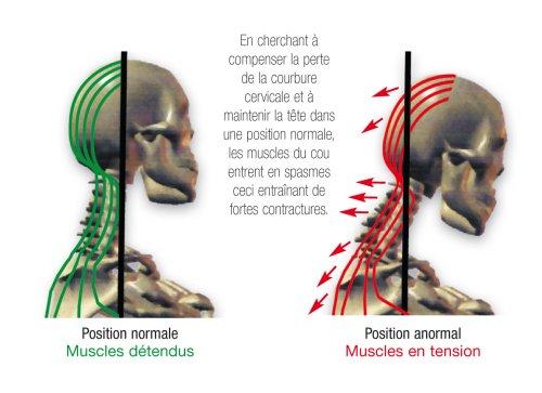 douleurs nuques antéprojection tête